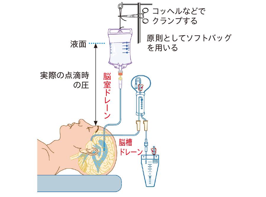 脳槽ドレナージと脳室ドレナージを用いた頭蓋内灌流