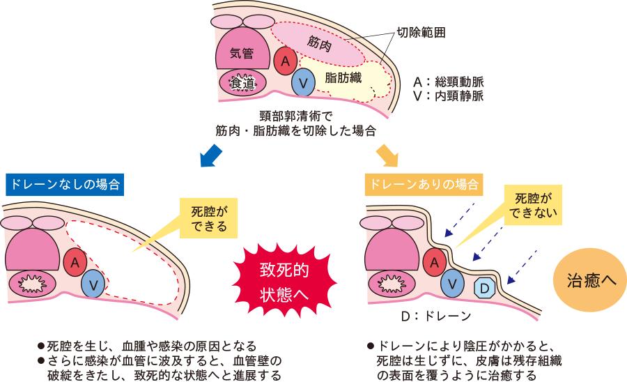 ドレナージによる死腔予防効果