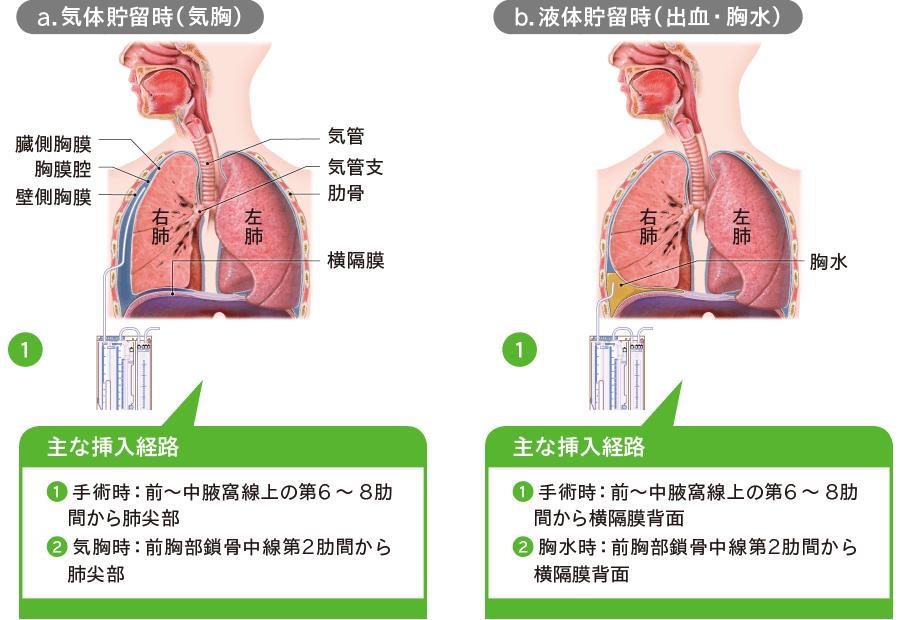 胸腔ドレナージ