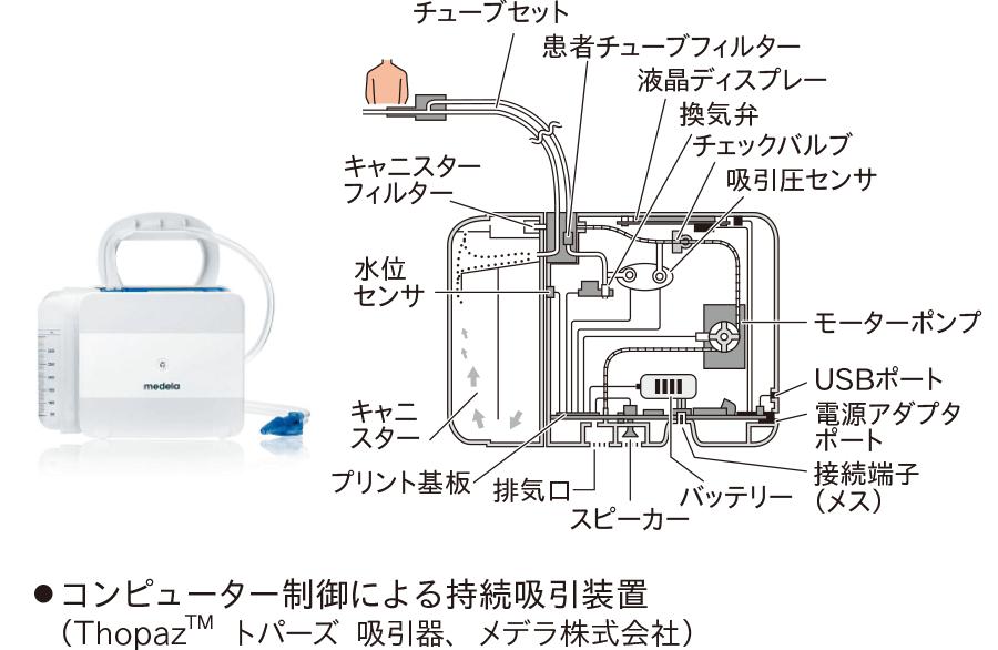 コンピューター制御による持続吸引装置 (ThopazTMトパーズ吸引器、メデラ株式会社)