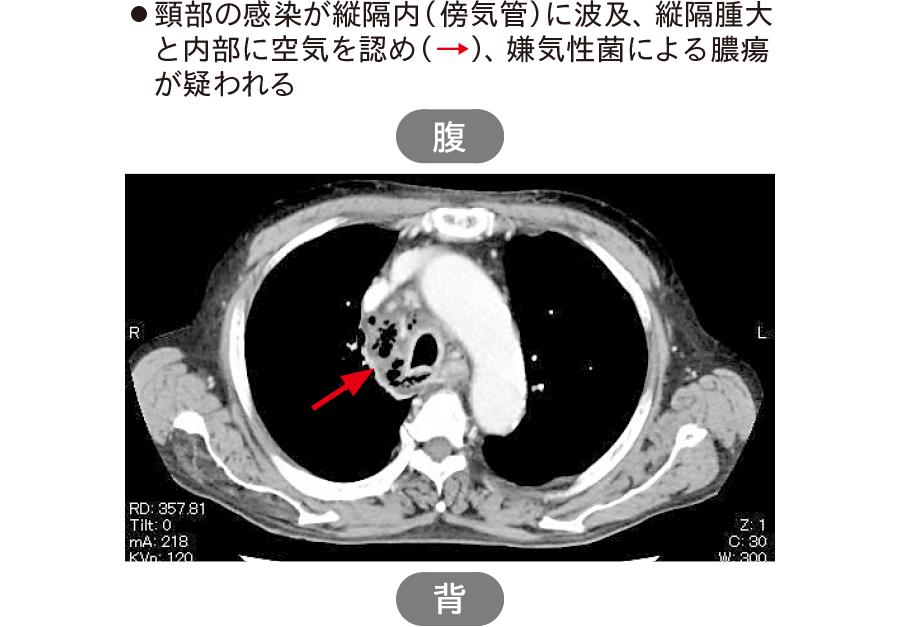 縦隔膿瘍(壊死性降下性縦隔炎)のCT