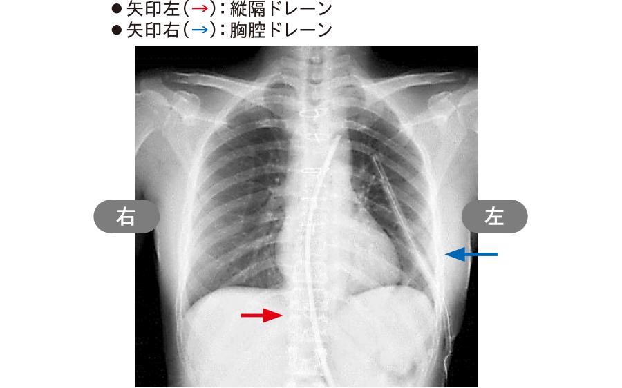 胸骨正中切開後のドレーン留置部位(胸部X線