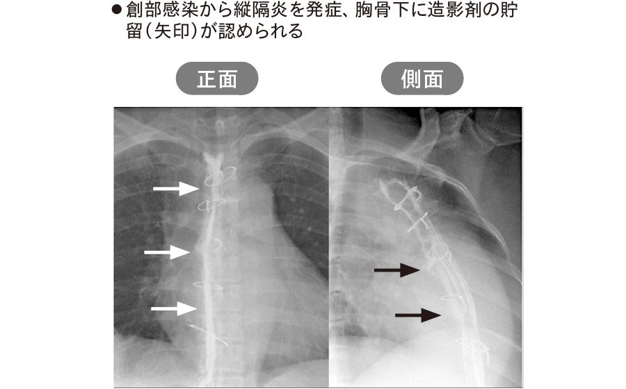 胸骨正中切開術後の縦隔炎(縦隔造影検査)