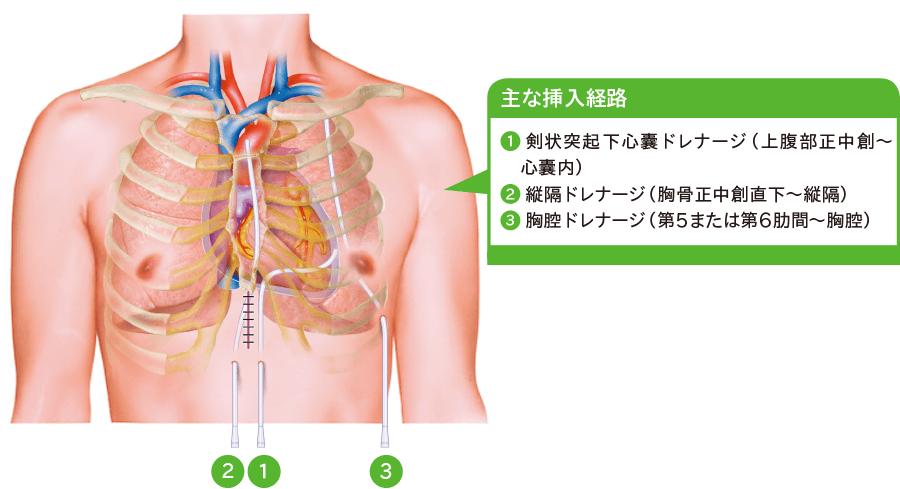心臓外科手術(開心術)後ドレナージ