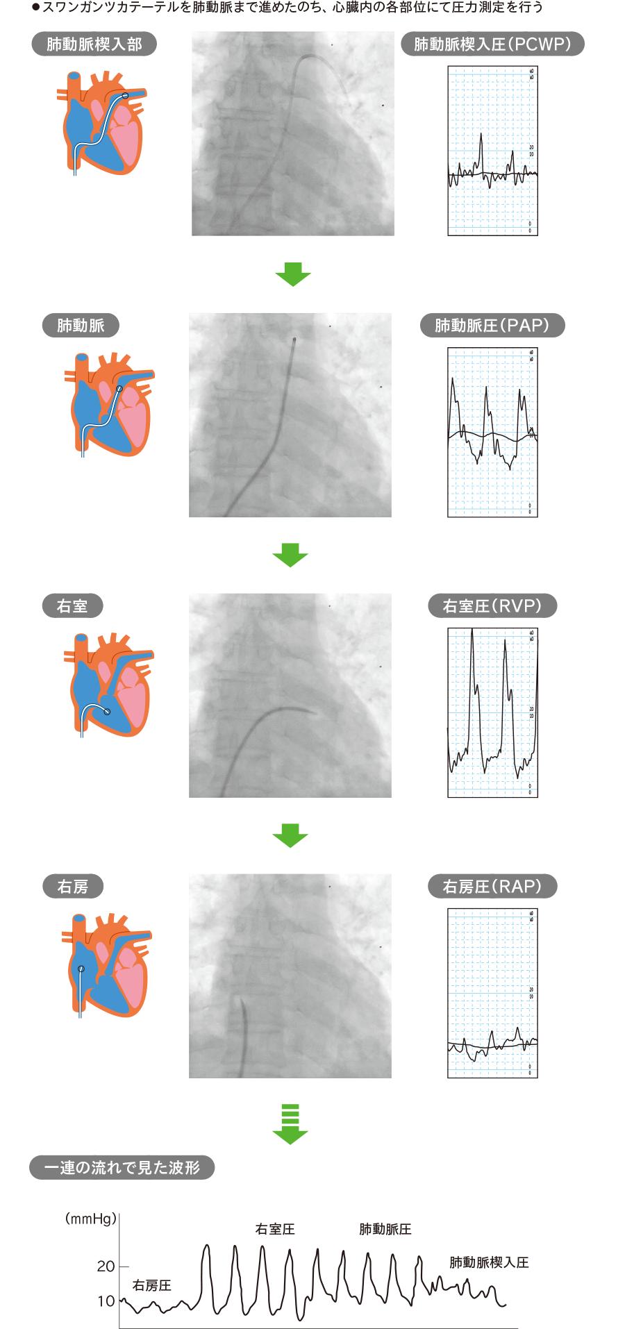 スワンガンツカテーテルの先端部位と圧波形(大腿静脈アプローチの場合)