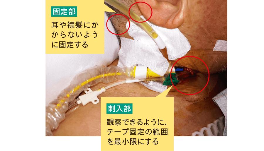 固定時のポイント(内頸静脈)
