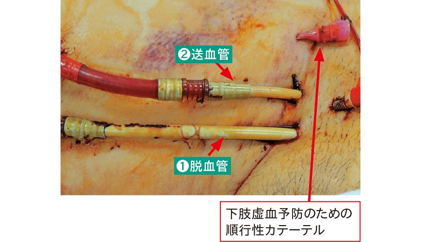 大腿の挿入部位