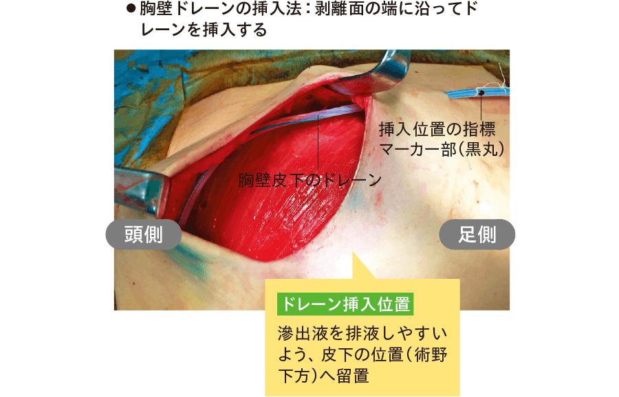 乳房切除後における胸壁ドレーンの挿入