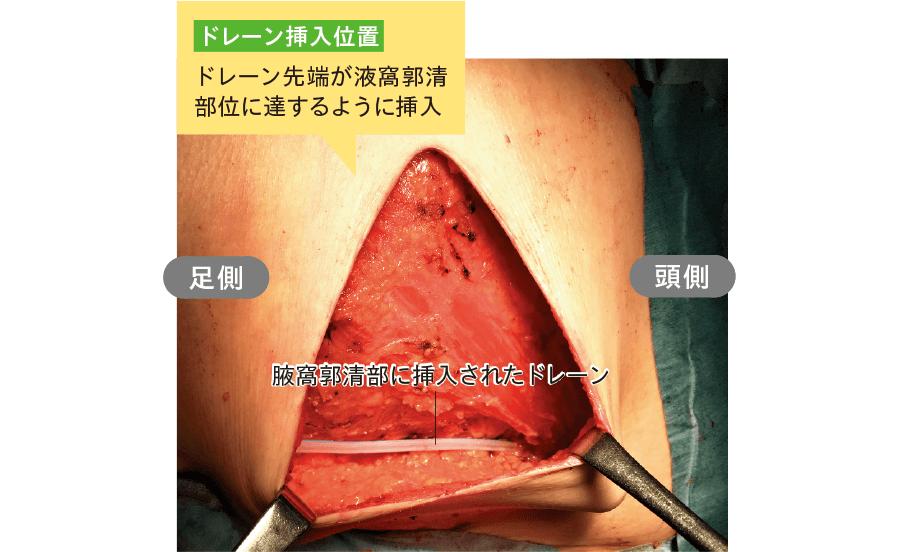 腋窩リンパ節郭清術後のドレーン留置