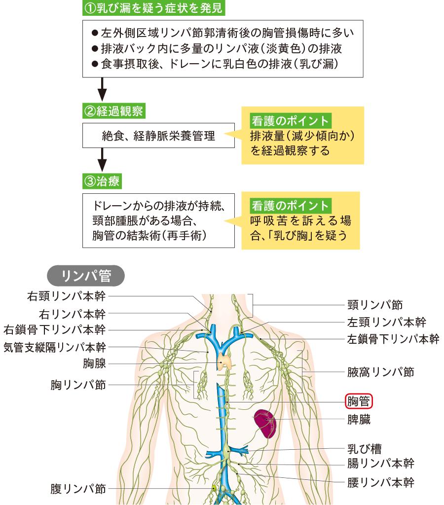 乳び漏の診断と治療