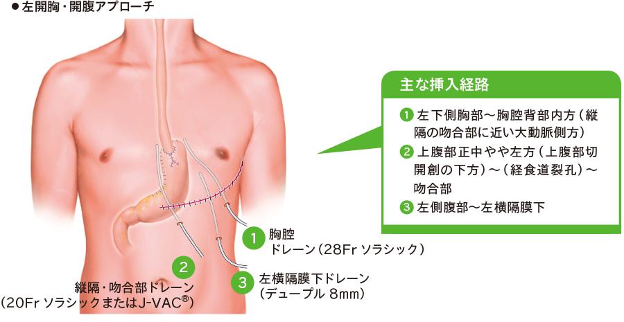 下部食道・噴門側胃切除、リンパ節郭清部D1+、食道・胃吻合再建時のドレーン留置