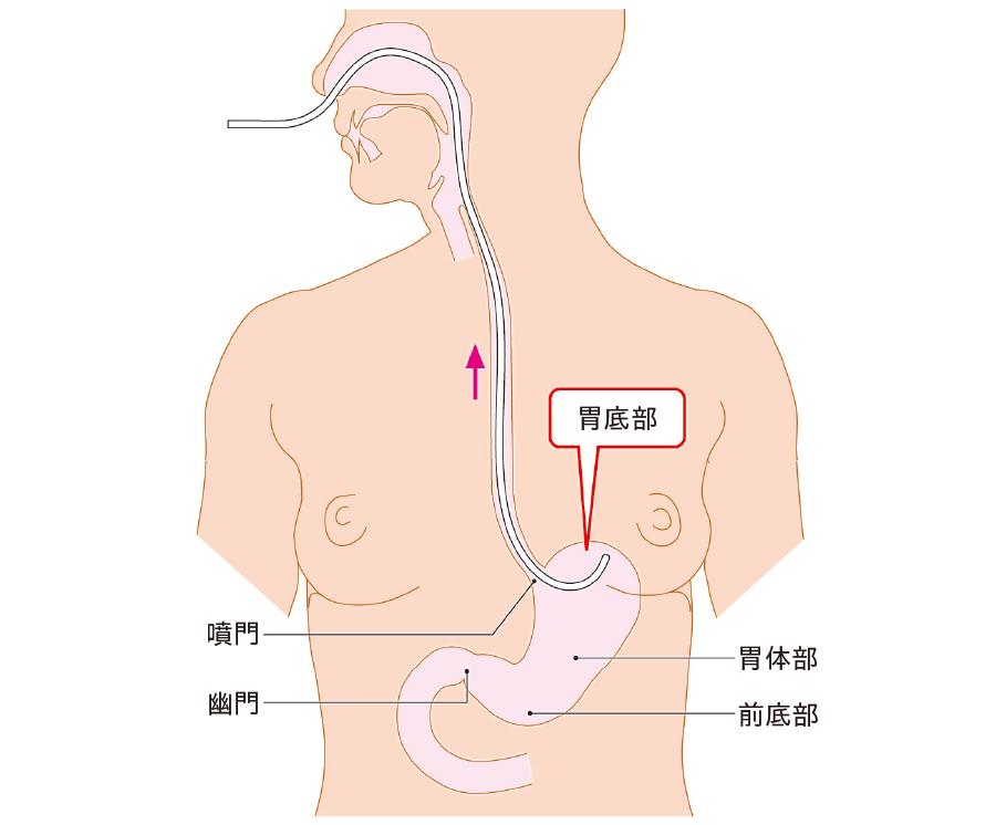 胃内腔のドレナージ
