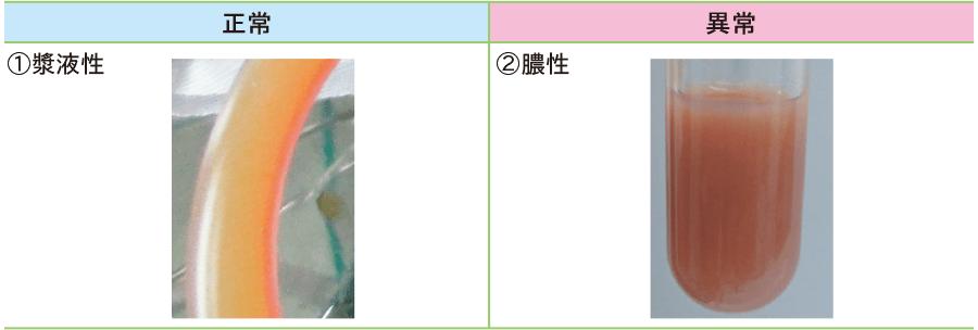 上腹部腹膜炎ドレナージの排液(一例)