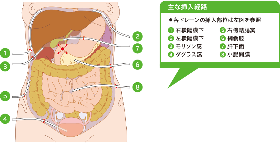腹膜内膿瘍ドレナージ