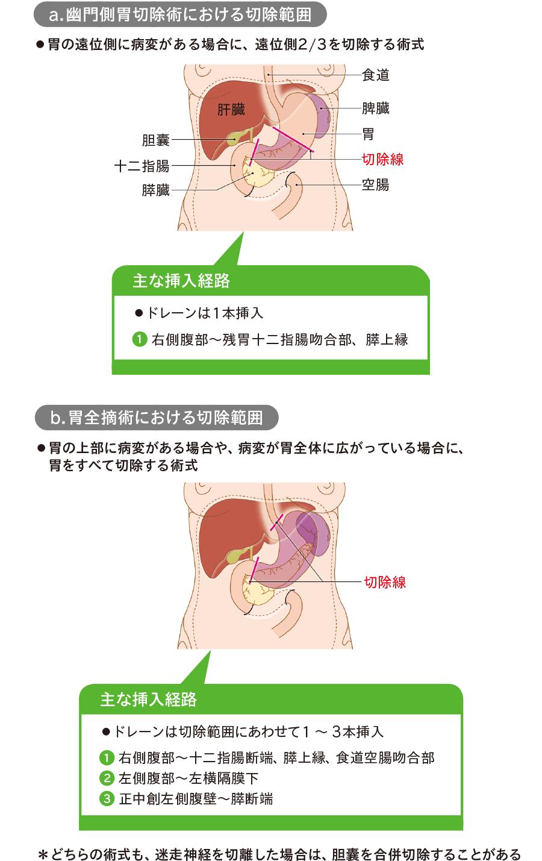 胃手術後ドレナージ