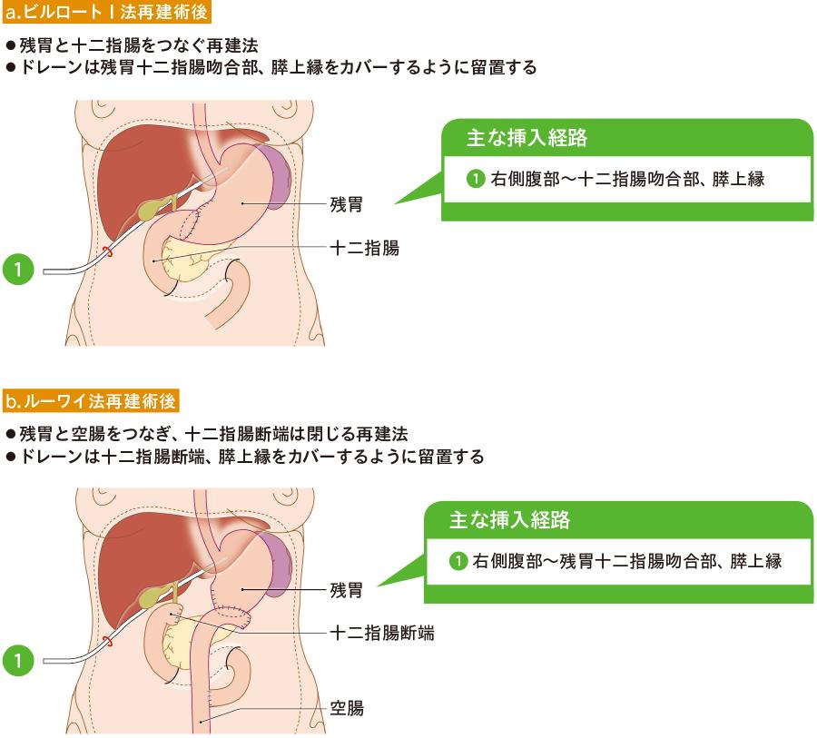 幽門側胃切除術におけるドレーン留置位置