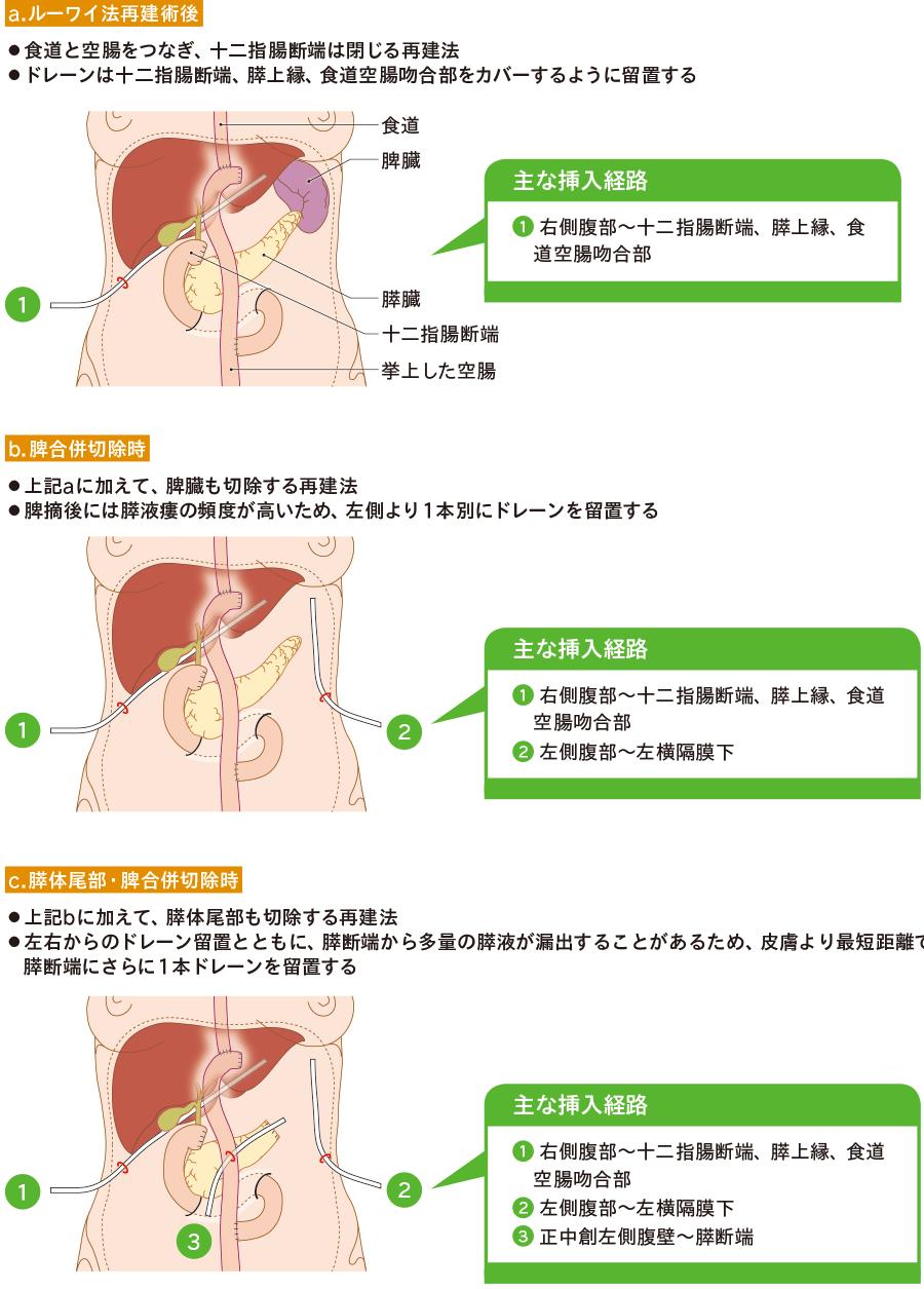 胃全摘術におけるドレーン留置位置