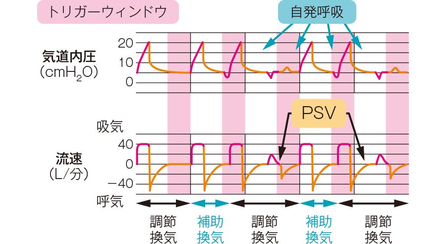 SIMV(VC-SIMV)モード