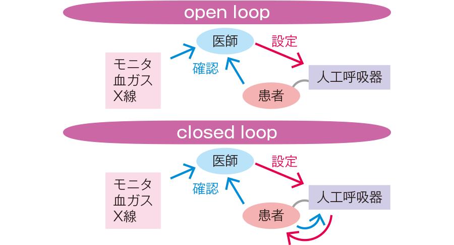 open loopとclosed loop