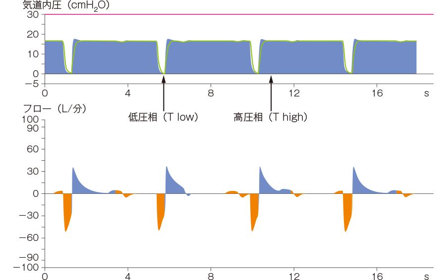 APRVの基本波形