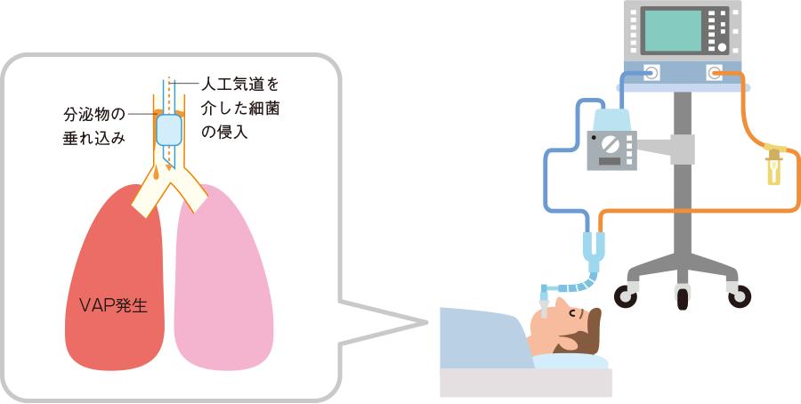 VAPの発症機序