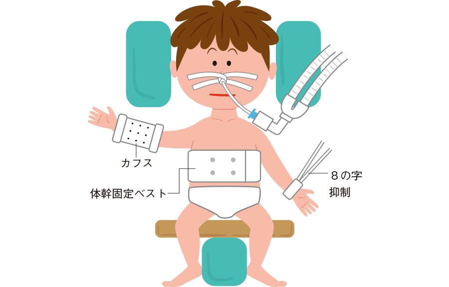 小児の事故抜管を予防するための対応は?