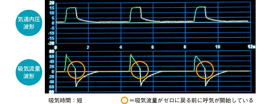吸気流量波形