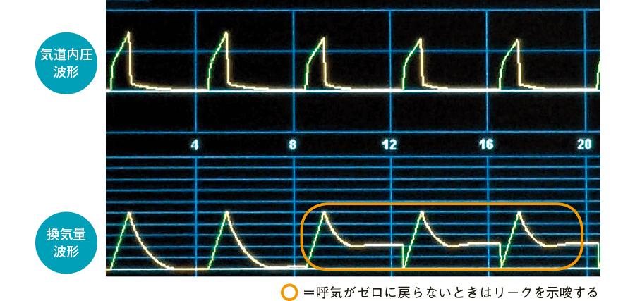 換気量波形