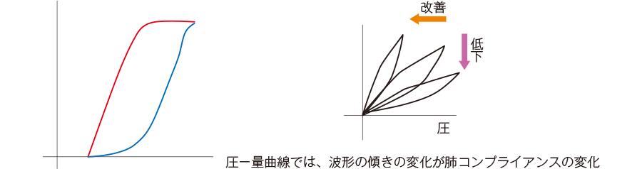 圧−換気量曲線
