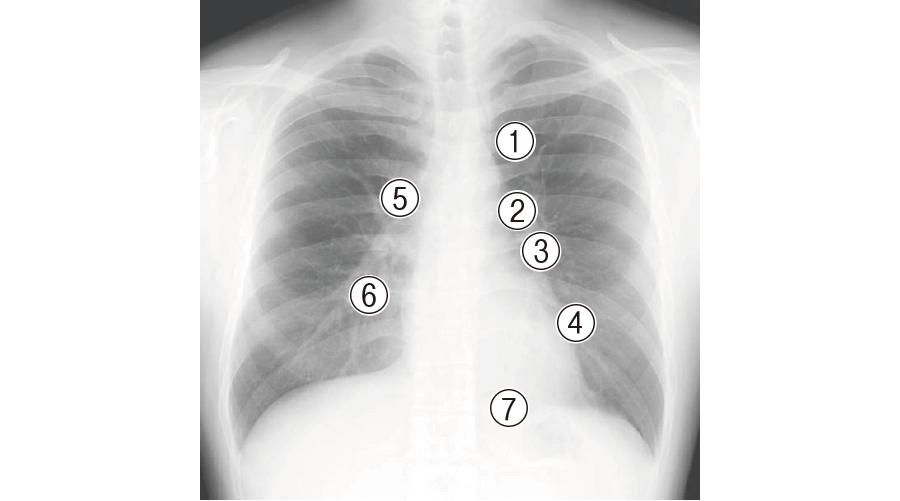 胸部X写真における観察ポイント