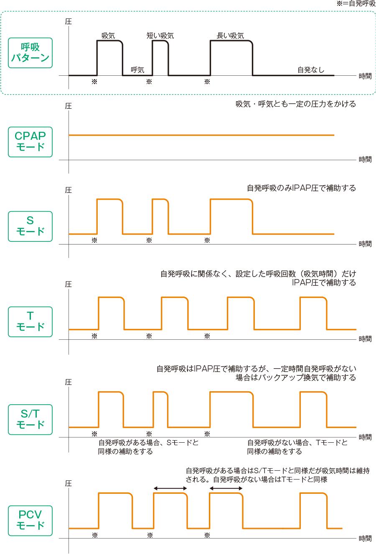 NPPVに使用される換気モードと特徴