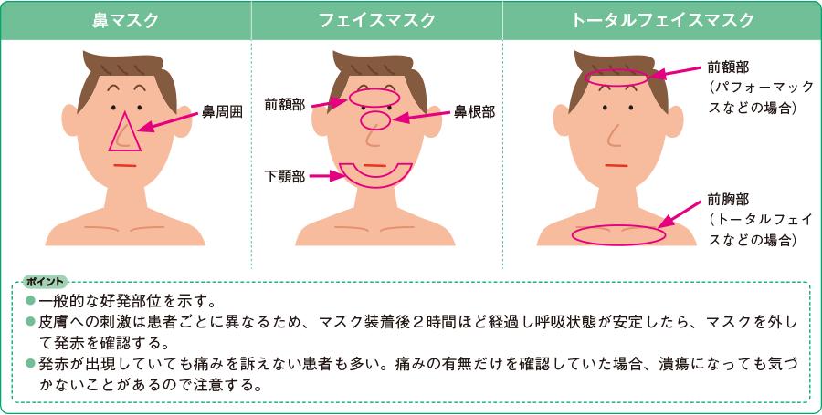 皮膚損傷の好発部位