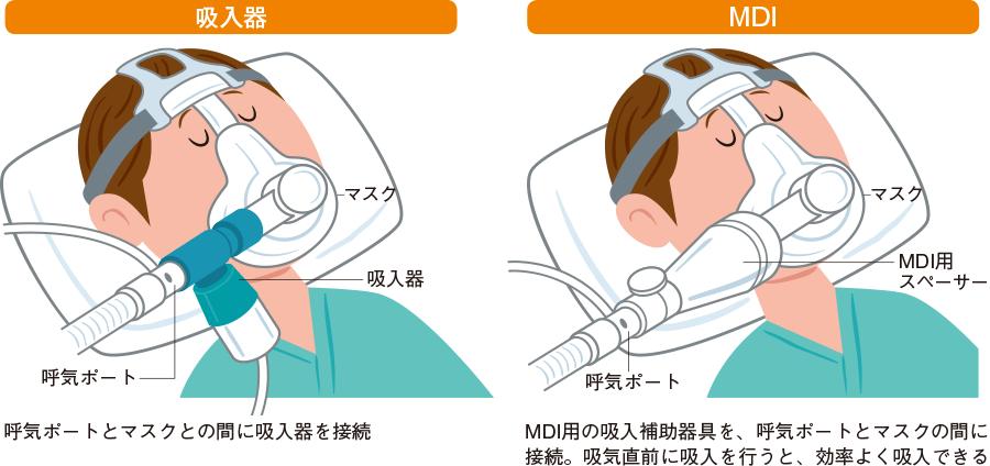 NPPV中の吸入療法