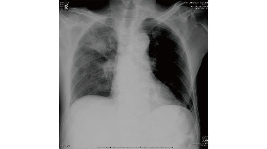 誤嚥性肺炎患者の胸部X線画像