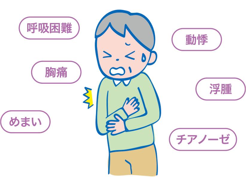 循環器疾患の患者さんでよくみられる症状 呼吸困難 胸痛 めまい 動悸 浮腫 チアノーゼ