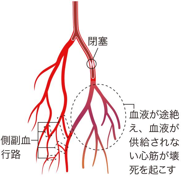 終動脈の閉塞