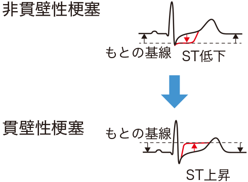 心筋梗塞のST変化