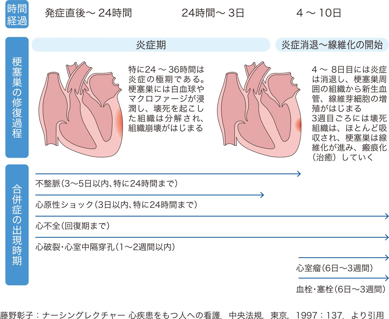 心筋の状態と合併症
