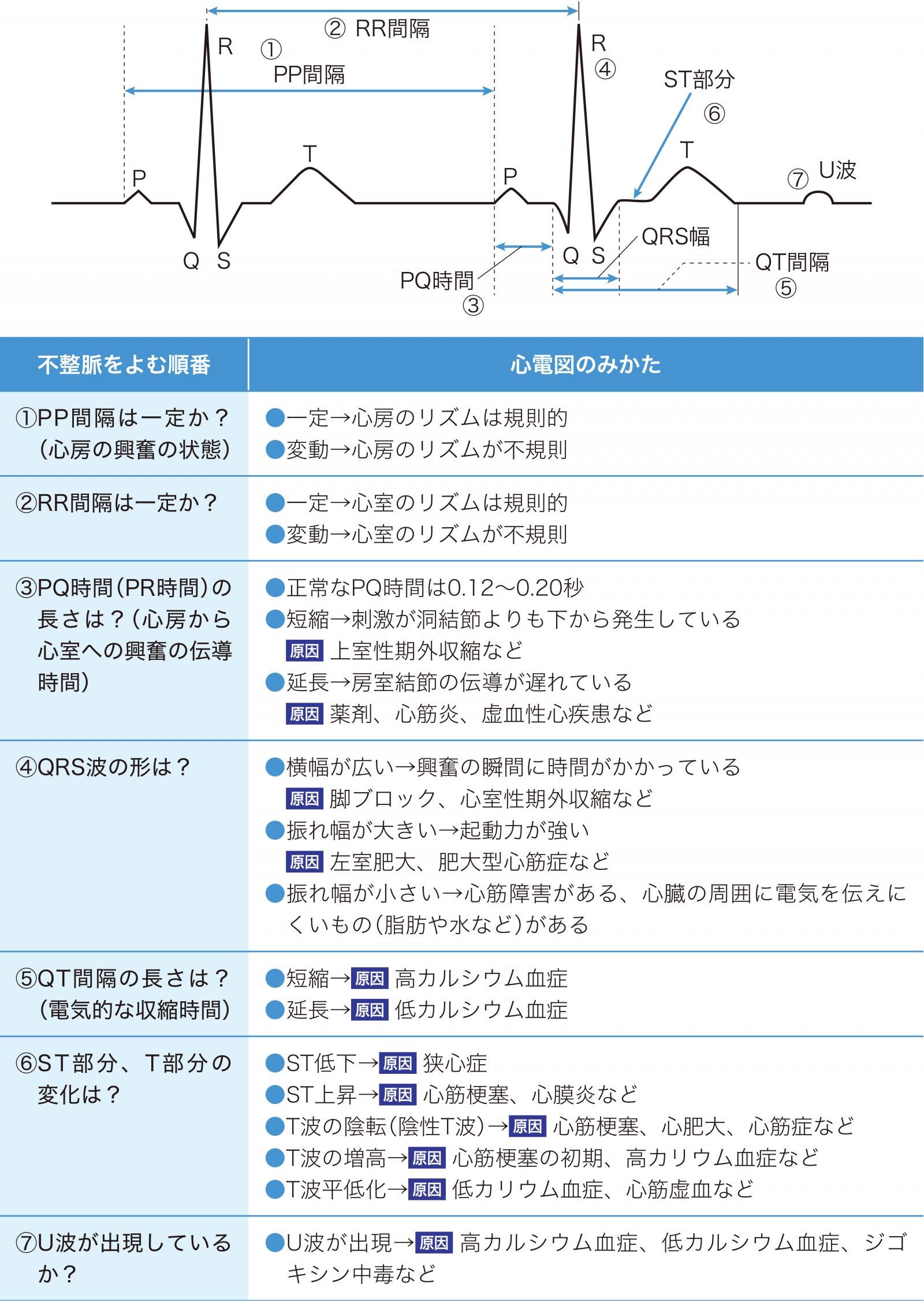 心電図の読み方の基本的な順番