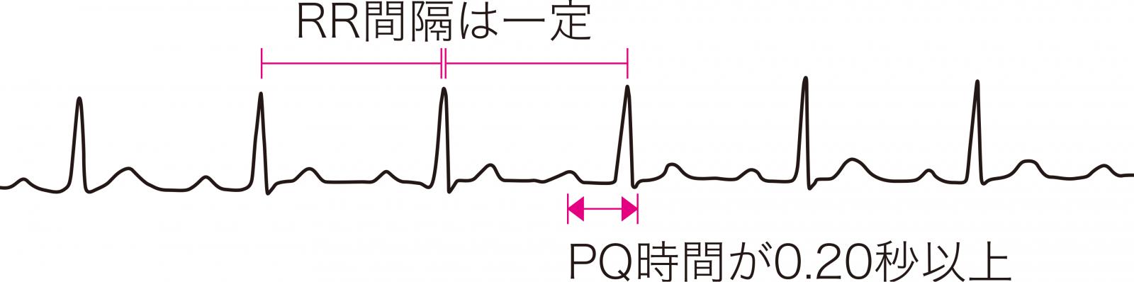 I度房室ブロックの心電図波形