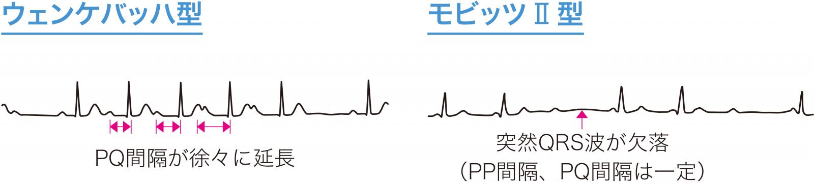 II度房室ブロックの心電図波形