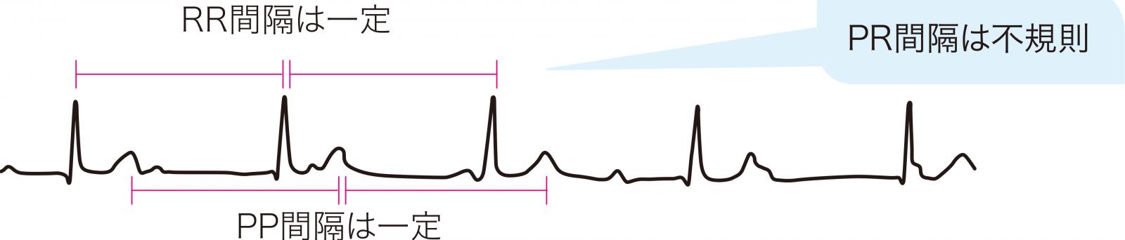 III度房室ブロックの心電図波形
