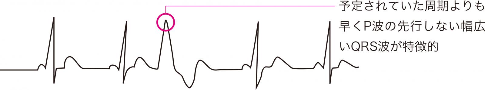 心室期外収縮(PVC)の心電図波形