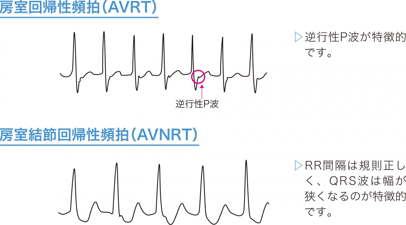 AVRTとAVNRTの心電図波形
