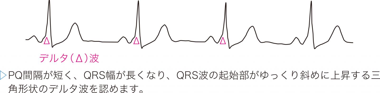 WPW症候群の心電図波形