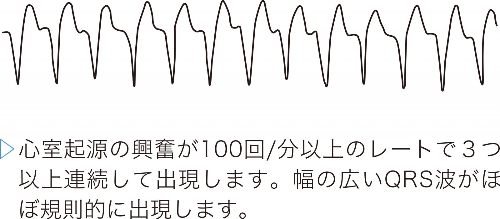 心室頻拍(VT)の心電図波形