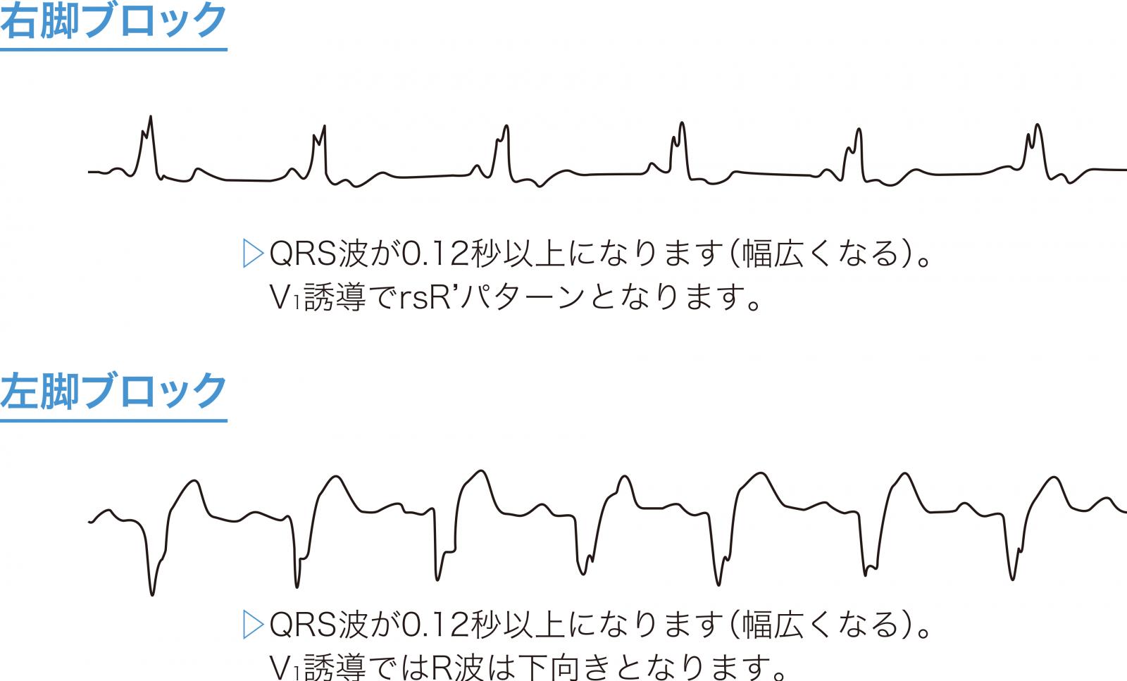 脚ブロックの心電図波形