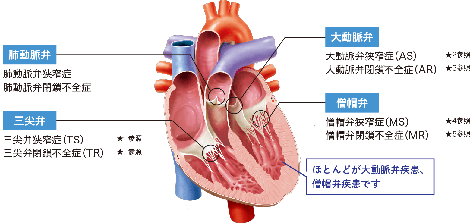 心臓弁膜症の分類_肺動脈弁_三尖弁_大動脈弁_僧帽弁