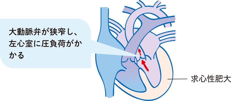 大動脈弁狭窄症(AS)の病態