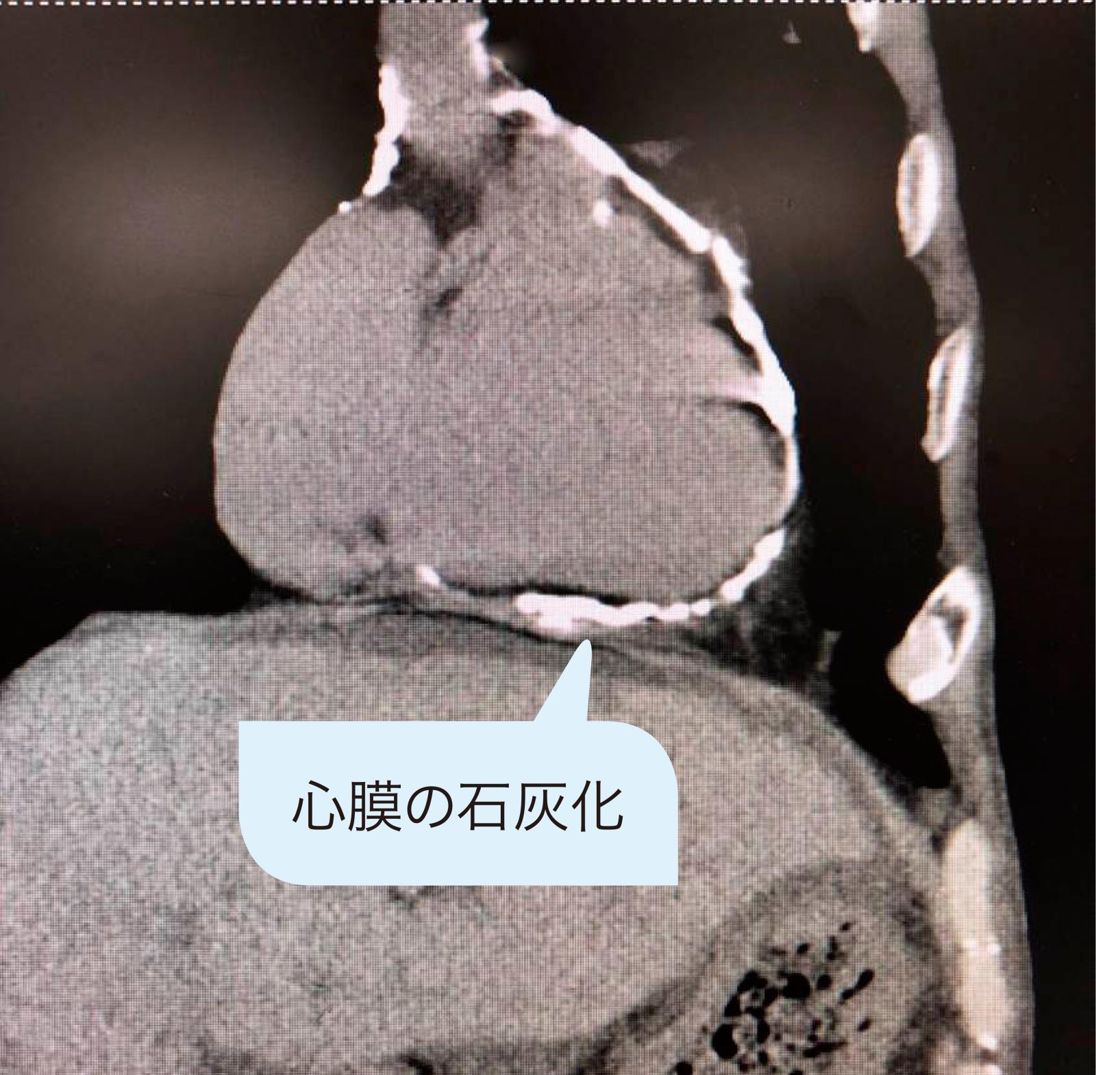心膜の石灰化(CT 画像)